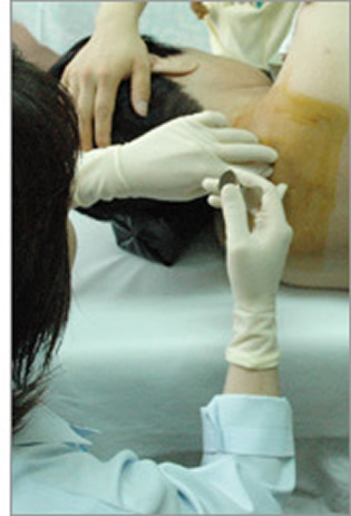 脊椎注射.jpg